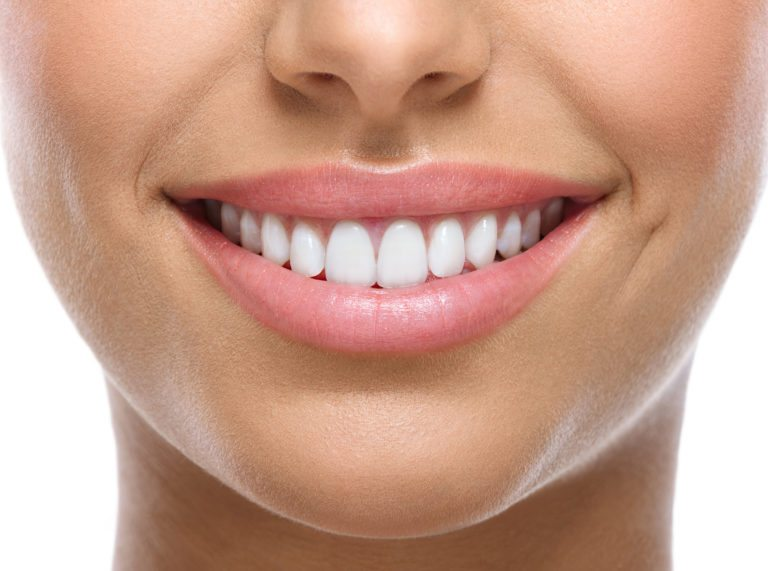 woman's nice white teeth smiling